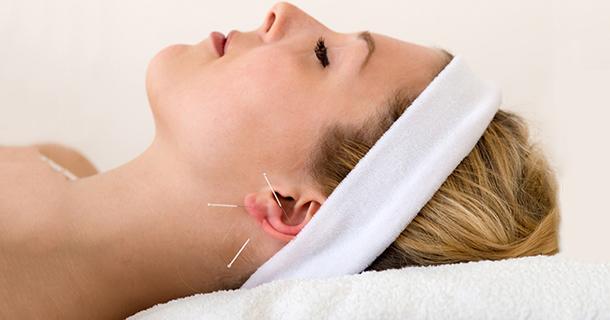 Maigrir par l'acupuncture auriculaire