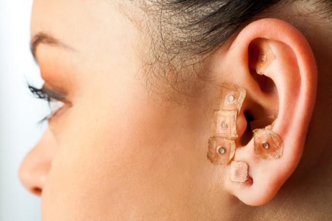L'oreille est une zone d'acupuncture pour perdre du poids
