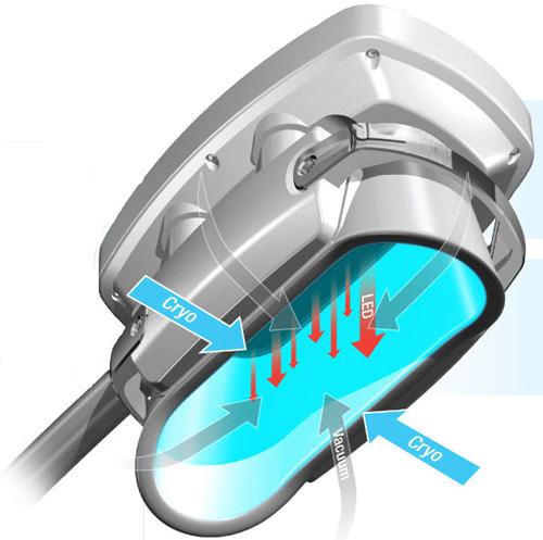 Une machine de coolsculpting aspirante pour des séances non invasives